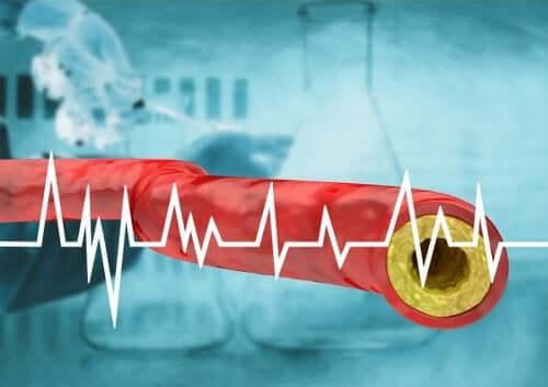 Doorsnede van een ader met te hoge cholesterol
