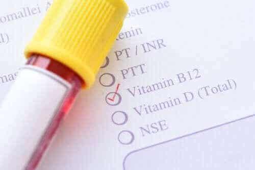 Wat is Methylmalonacidurie (MMA)?