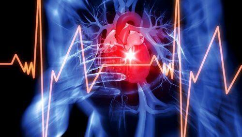Wat is pericardiale effusie