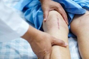 Hoe te herstellen na een knieoperatie