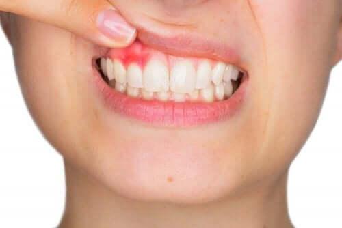 Vrouw met ontstoken tandvlees