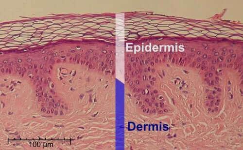 De epidermis en dermis van de huid