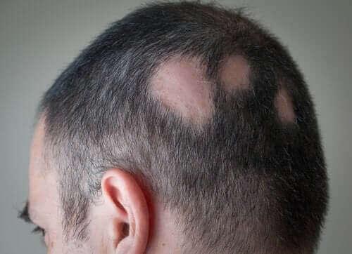 Een man heeft kale plekken op zijn hoofd