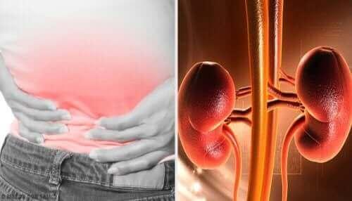 Pijn in de rug door een nierabces