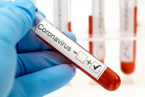 Bloedtest voor het coronavirus