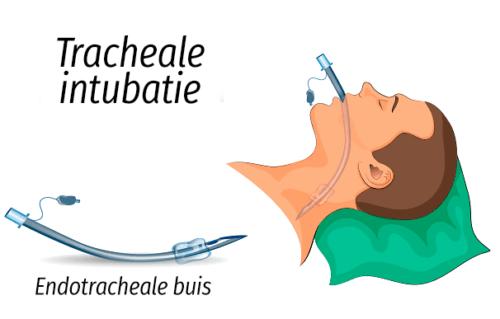 Intubatie