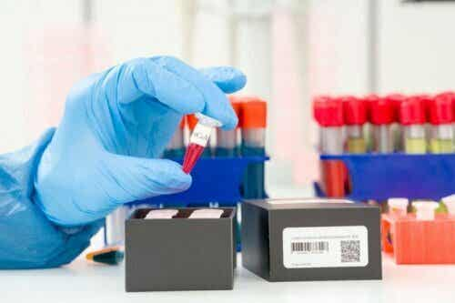Detectie van het coronavirus: wat is een PCR-test?