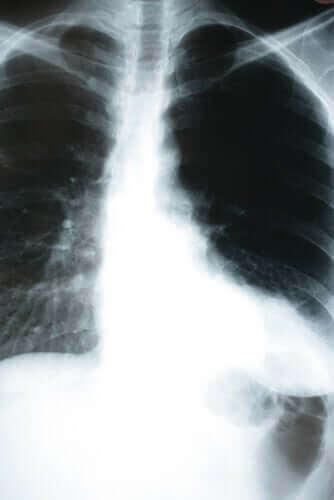 Hoe een longontsteking het lichaam beïnvloedt