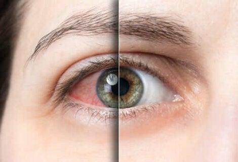 Rood oog en gezond oog