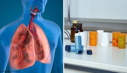Medicijnen voor patiënten met longklachten