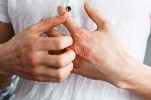 Wat is atopische dermatitis precies?
