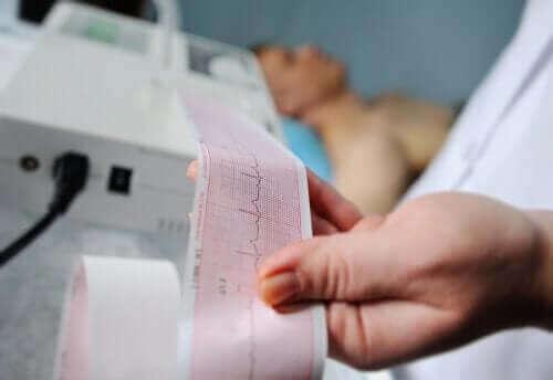 Arts bekijkt een ECG