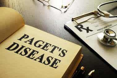 Ziekte van Paget: alles dat je moet weten