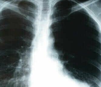 Röntgen van een longontsteking
