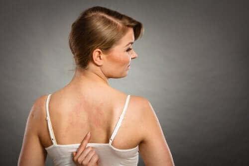 Een vrouw met uitslag op haar rug