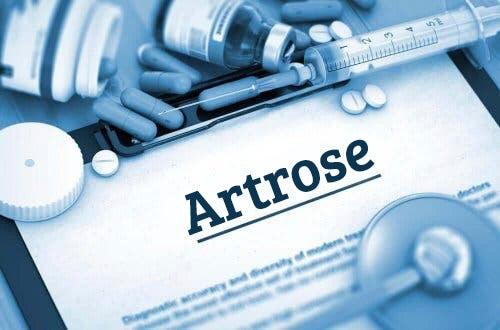 Etoricoxib gebruiken bij artrose