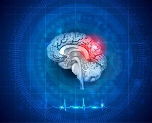 Een dwarsdoorsnede van de hersenen met hartslag eronder