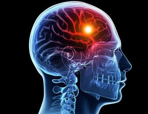Dwarsdoorsnede van de hersenen