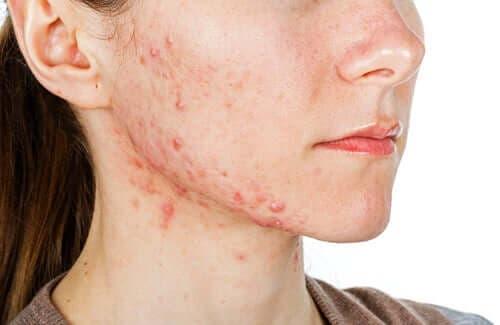 Een jonge vrouw met acne