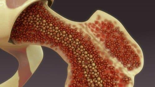 Uitvergroting van beenmerg