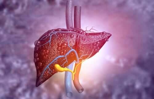 Een ongezonde lever