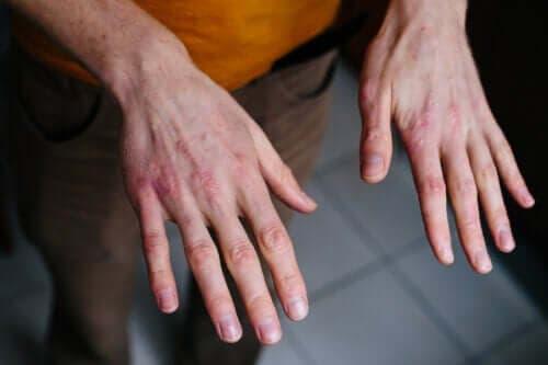 Droge en gebarsten handen: bescherming tegen de kou