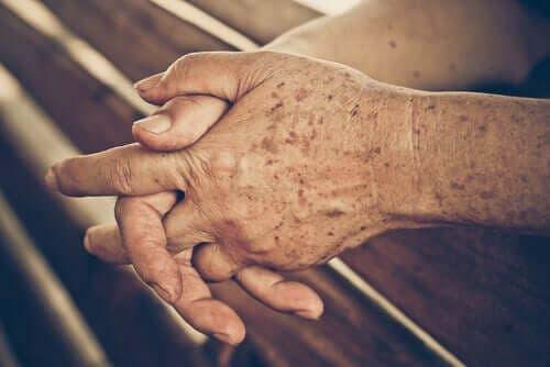 Handen met ouderdomsvlekken