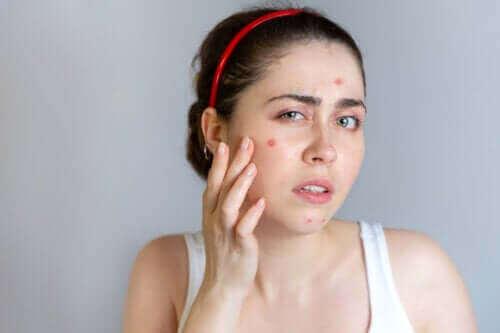 De beste behandelingen tegen acne om te proberen