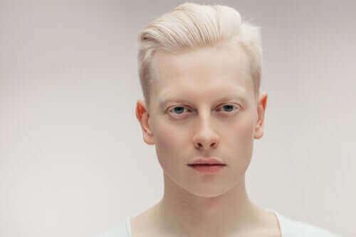 Leer vandaag alles over albinisme