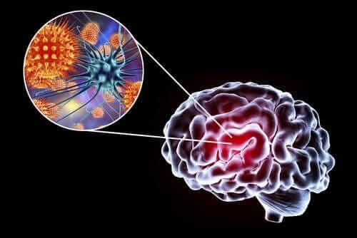 Encefalitis: symptomen, oorzaken en behandeling