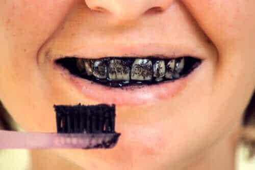 Risico's van geactiveerde houtskool voor je orale gezondheid