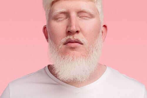 Man met albinisme