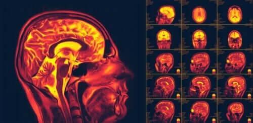 Wat is neuroplasticiteit in de hersenen?