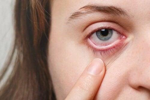 Een vrouw wijst naar haar oog