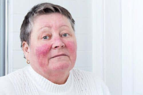 Oorzaken en symptomen van rosacea