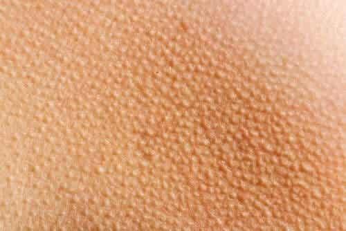 Pilo-erectie: als je er kippenvel van krijgt