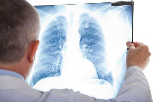 Een röntgenfoto van de longen om een longknobbeltje te ontdekken