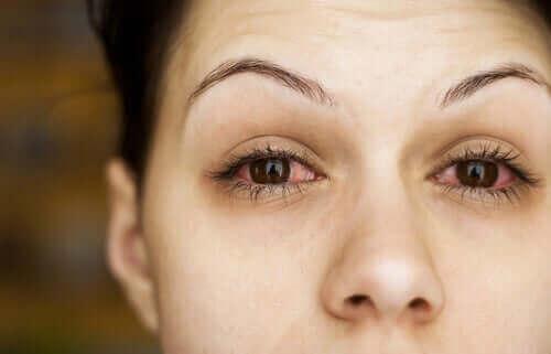 Een vrouw met rode ogen