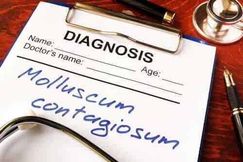 Wat is molluscum contagiosum?