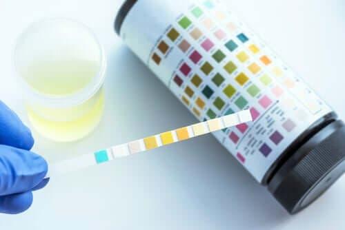 Wat kan een urineonderzoek detecteren?