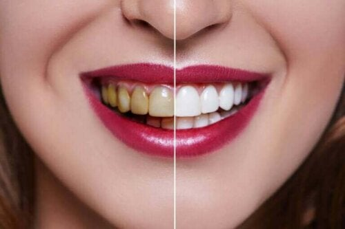 Een vrouw met aan de ene kant gele tanden en aan de andere kant witte tanden