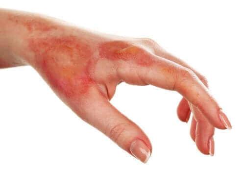 Een verbrande hand