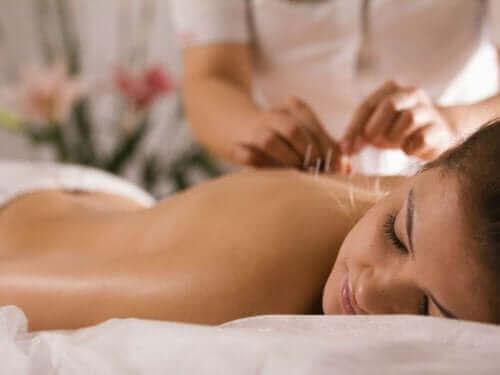 Een vrouw die acupunctuur krijgt