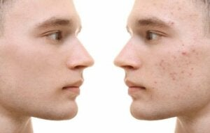 Remedie van kurkuma om acne te behandelen