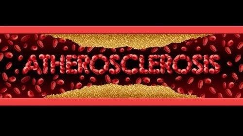 Symptomen en behandeling van atherosclerose