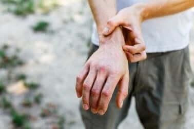 Hand met bultjes