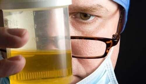 Een arts die een urinemonster vasthoudt