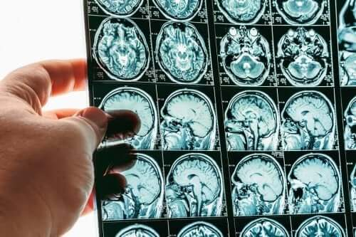 Alles over zwelling van de hersenen