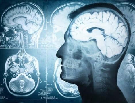 beelden van hersenscans