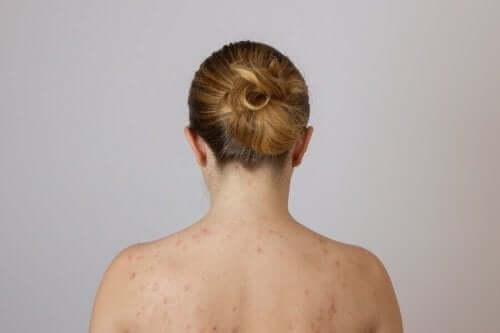 Vrouw met vetknobbels op de rug